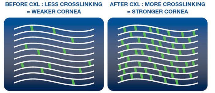 corneal-cross-linking