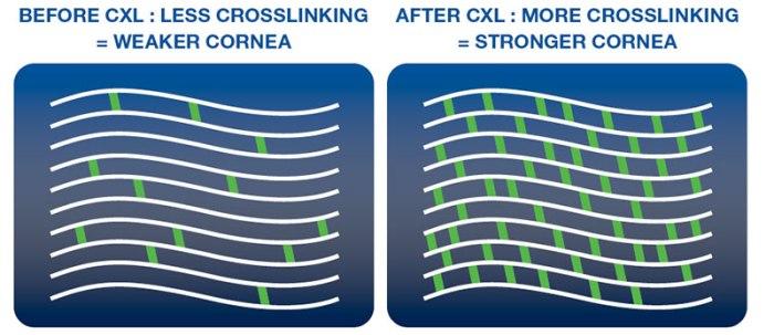 corneal-cross-linking