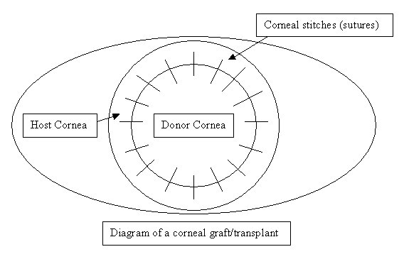 corneal graft diagram