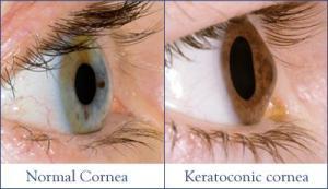 Keratoconus%20C3-R