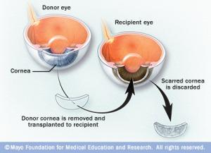 vi7_cornea_transplant