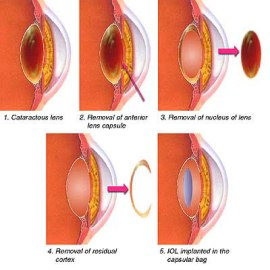 steps-of-cataract-surgery