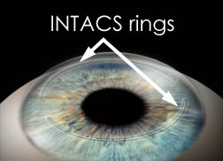 intacs_rings