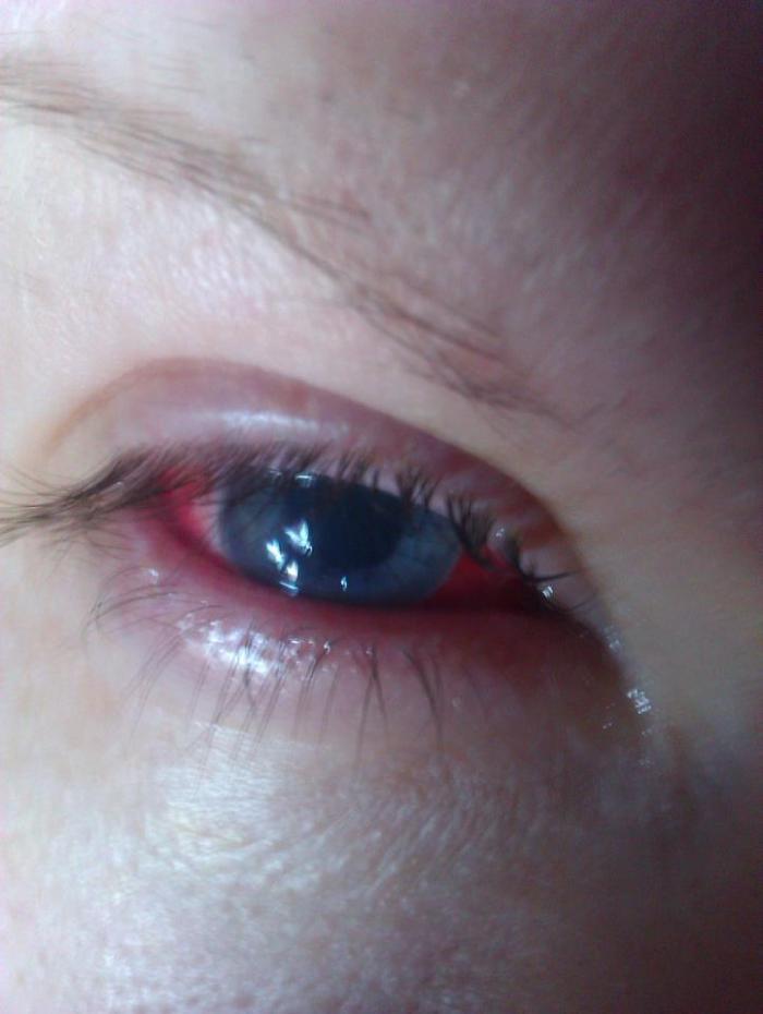 my eye day 1 post graft
