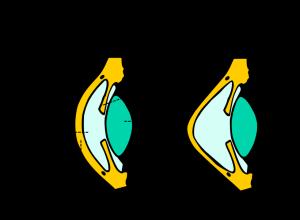 Keratoconus.svg