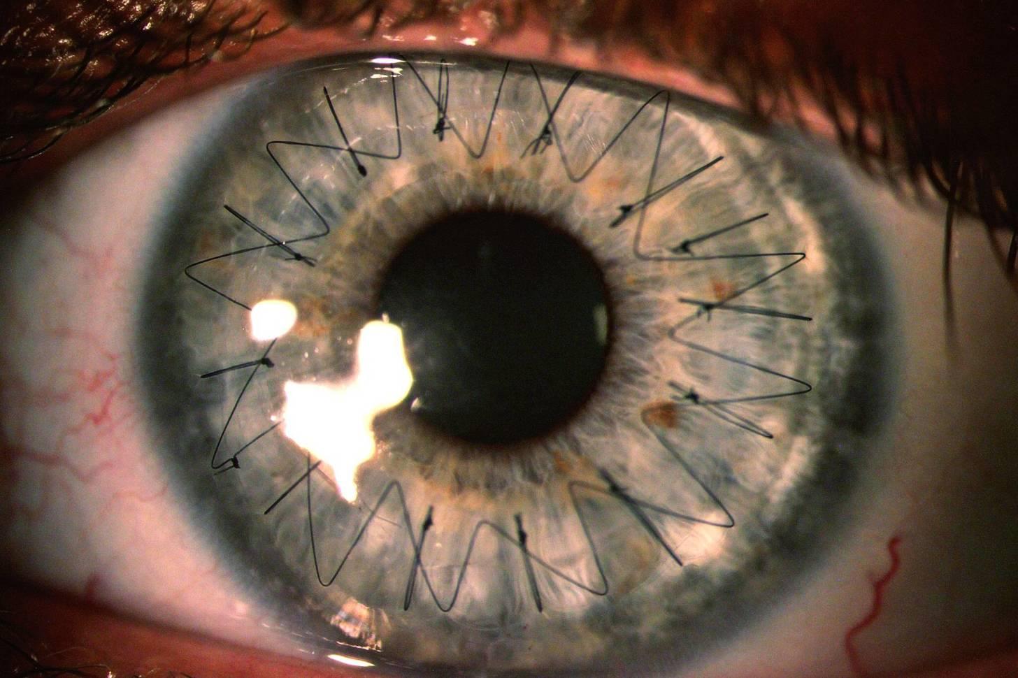 Person Eyes Turn Like Dog Eyes