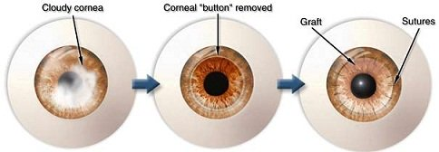xcornealgraft-diagram-jpg-pagespeed-ic-6vwvoics7n